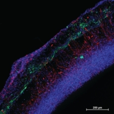 Cultivated neural tissue (photo credit: Michael Schwartz, University of Wisconsin-Madison)