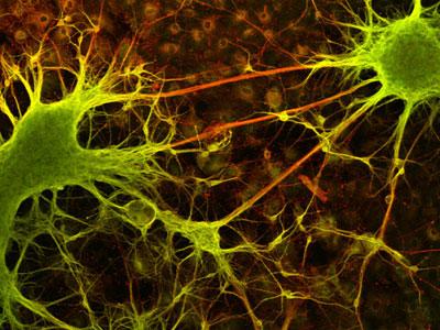 nt-2-neuronal-cells